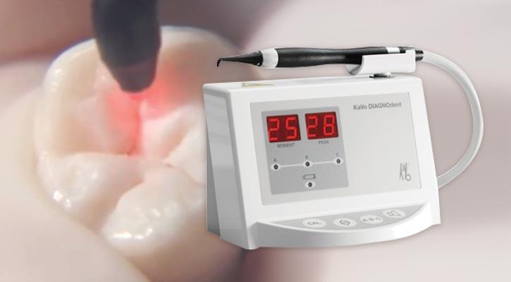 Dental-Hygiene-Services-DIAGNOdent-Laser-Cavity-Detection
