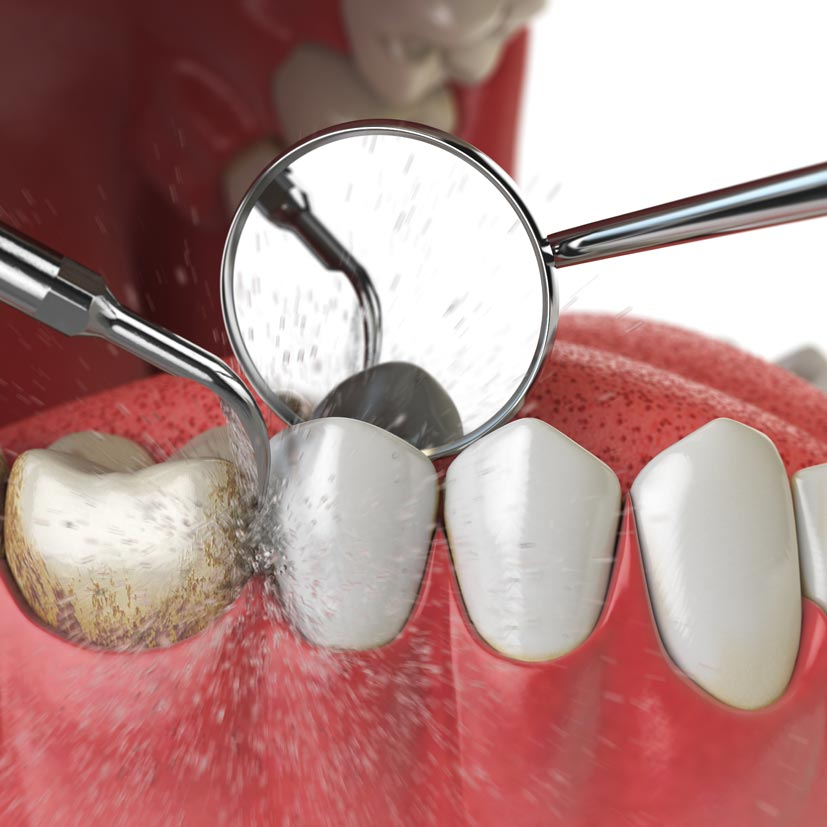 Dental-Hygiene-Services-Professional-Cleaning