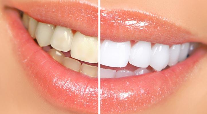 Dental-Hygiene-Services-Professional-Teeth-Whitening