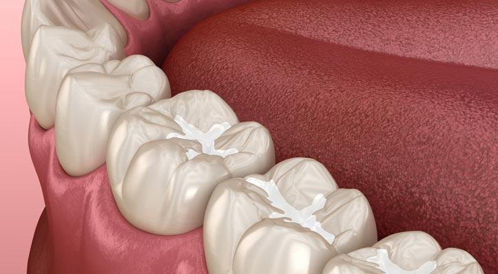 Dental-Hygiene-Services-Sealants