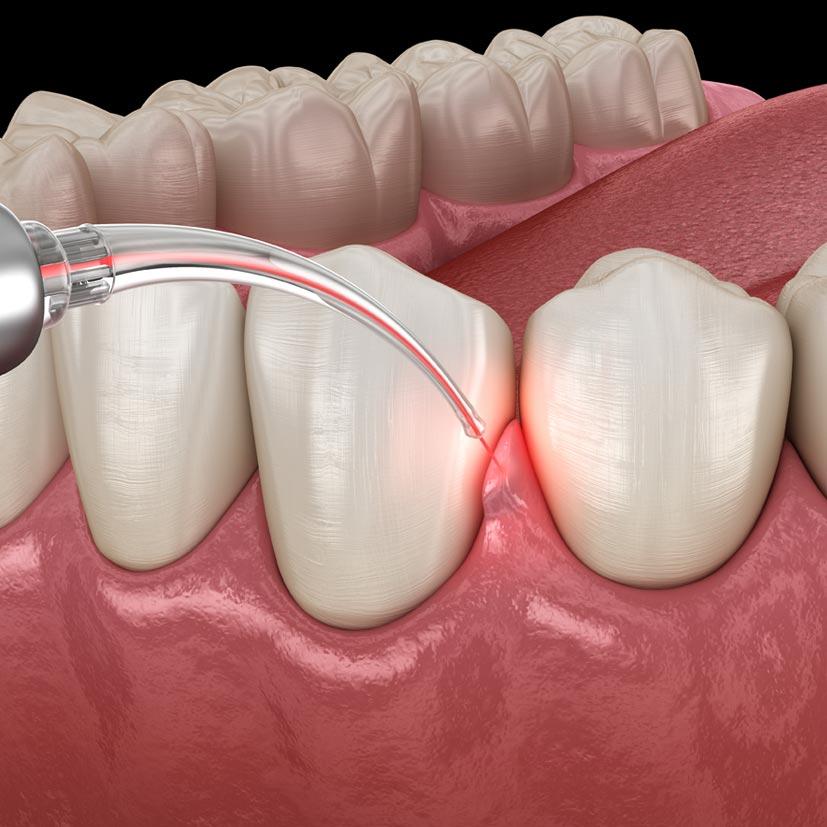Dental-Hygiene-Services-Treatments-Gum-Disease